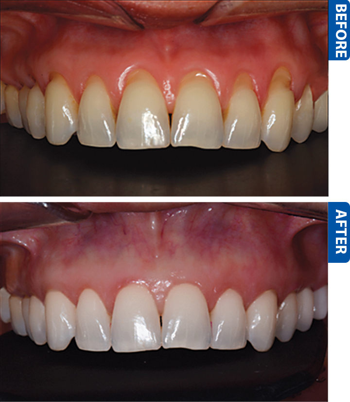 gum recession before after
