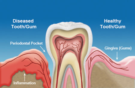 what is gum disease treatment